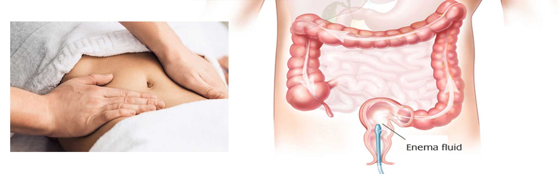 Basti Therapy I Colonic